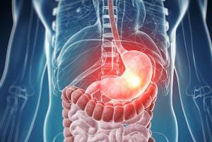 افزایش ابتلا به سرطانهای گوارش و روده بزرگ در فارس