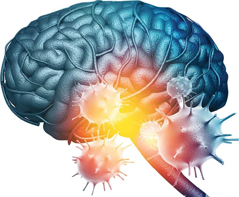 کرونا/ آيا کوويد19 خطر سکته مغزي را افزايش ميدهد؟