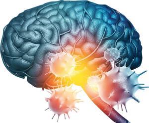 کرونا/ آیا کووید19 خطر سکته مغزی را افزایش میدهد؟