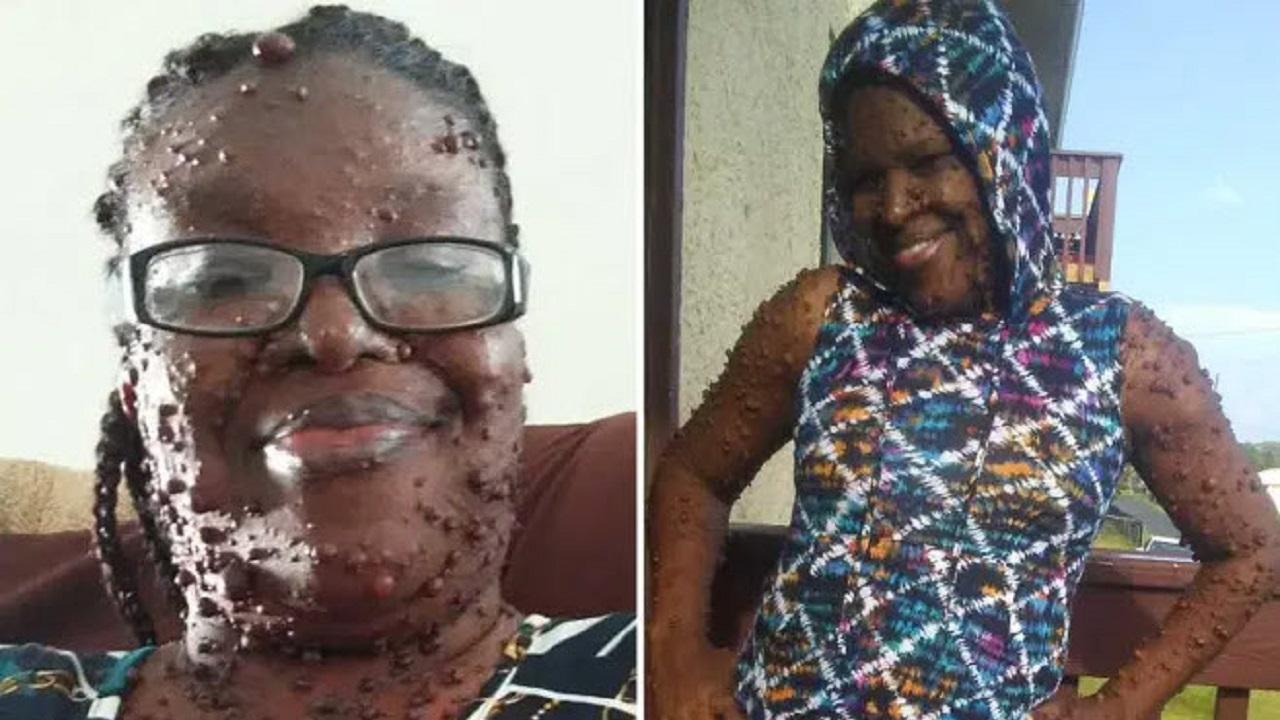 تومورهاي وحشتناکي که زندگي را به کام زن جوان زهر کرده است!