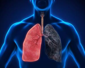 پاکسازی ریهها راهی برای پیشگیری از بیماریهای مرگبار تنفسی
