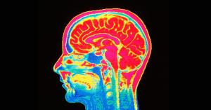 هوش مصنوعی IBM میتواند روند پیشرفت بیماری پارکینسون را پیشبینی کند
