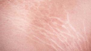 6 توصیه برای بهبود وضعیت ترکهای پوستی