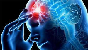 علائم هشدار سکته مغزی