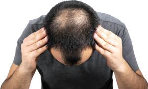 عواملی که باعث کم پشتی مو میشود