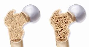 11 نکته درباره پوکی استخوان