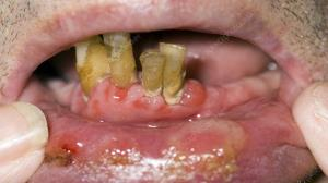 علائم دهانی که نشان دهنده بیماریهای مخوف هستند