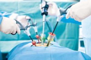 لاپاراسکوپی رحم و تخمدان، چسبندگی برطرف میشود؟