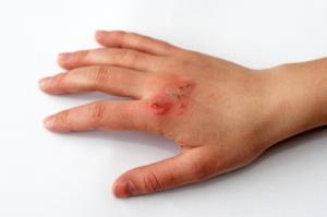 تشخیص سریع عفونت زخم با کمک حسگرهای کمهزینه