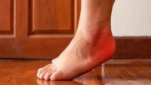 دلايل بروز درد در پاشنه پس از ورزش چيست؟