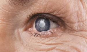مشکلات چشمی خطر ابتلا به زوال عقل را ۶۰ درصد افزایش می دهد
