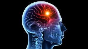 هنگام سکته مغزی پیش از رسیدن اورژانس چه کنیم؟
