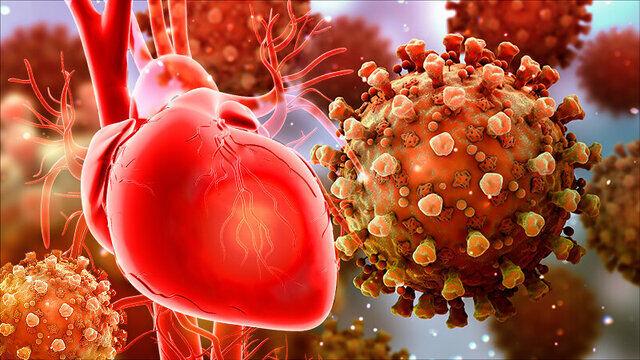 کرونا/ بیحرکتی مطلق بیماران قلبی مبتلا به کرونا سبب ایجاد لختگی میشود