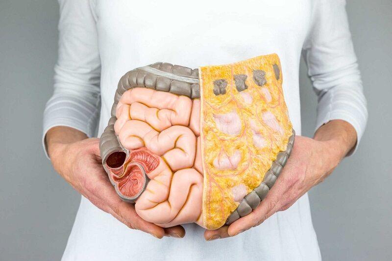 افزایش و رشد باکتریهای خوب روده با مصرف منظم ۶ ماده غذایی