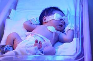 ماساژ کف پا؛ روشی برای کاهش زردی نوزادان