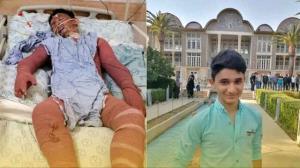 آخرین وضعیت نوجوان فداکار ایذهای؛ علی با ۹۰ درصد سوختگی حال خوبی ندارد