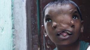نظریه عجیب مردم هند درباره دختربچهای که دو بینی دارد!