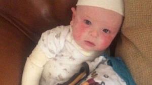 مومیایی کردن نوزاد بخاطر اگزمای دردناک پوستی
