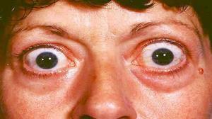 بیماری تیروئید چشمی و علائم آن