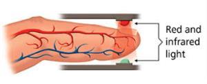 کرونا/ نکاتی مهم در استفاده از پالس اکسیمتر