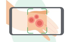 طراحی برنامهای برای تشخیص و درمان بیماریهای پوستی