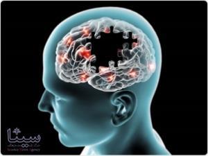محافظت از مغز در برابر آلزایمر به کمک ویتامین ب ۱۲