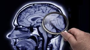 نتایج امیدوارکننده یک دارو برای درمان آلزایمر