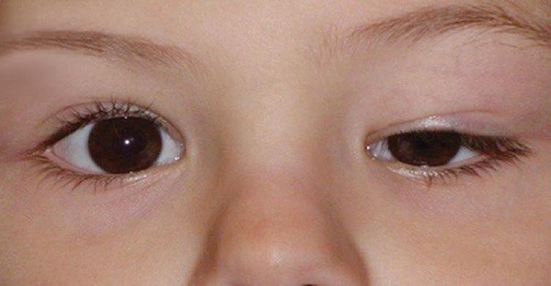 اینفوگرافی/ علت و درمان افتادگی پلک چشم