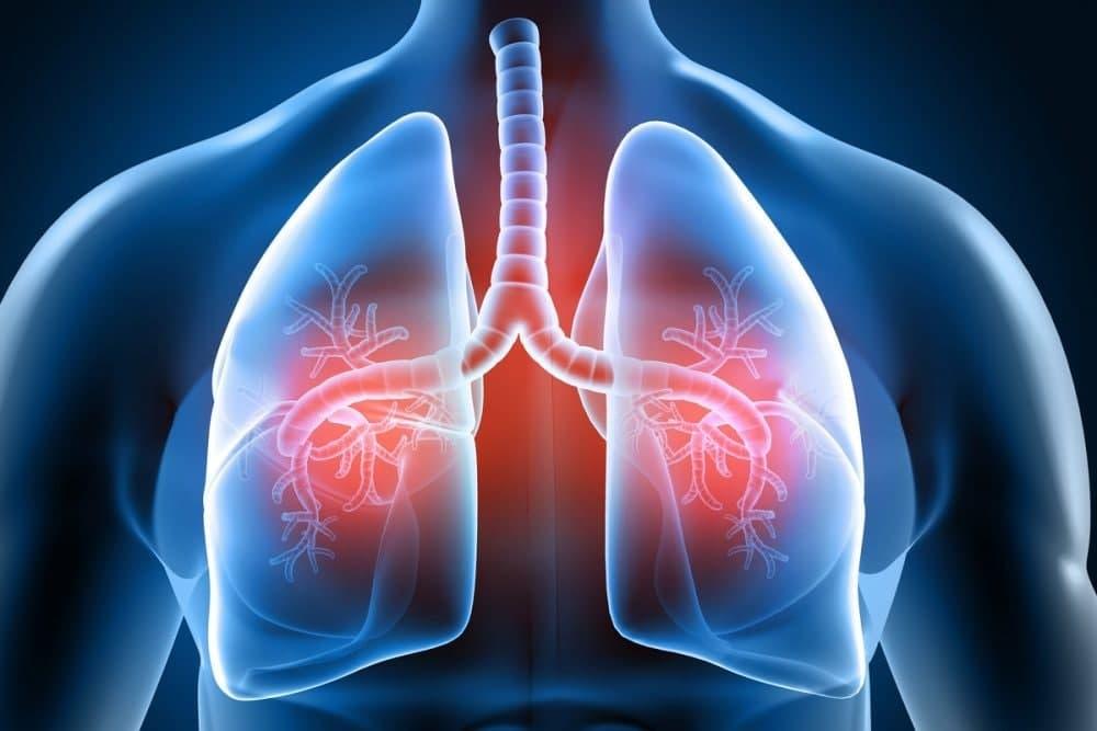 چگونه ریهها را تقویت کرده و از بیماریهای کشنده جلوگیری کنیم