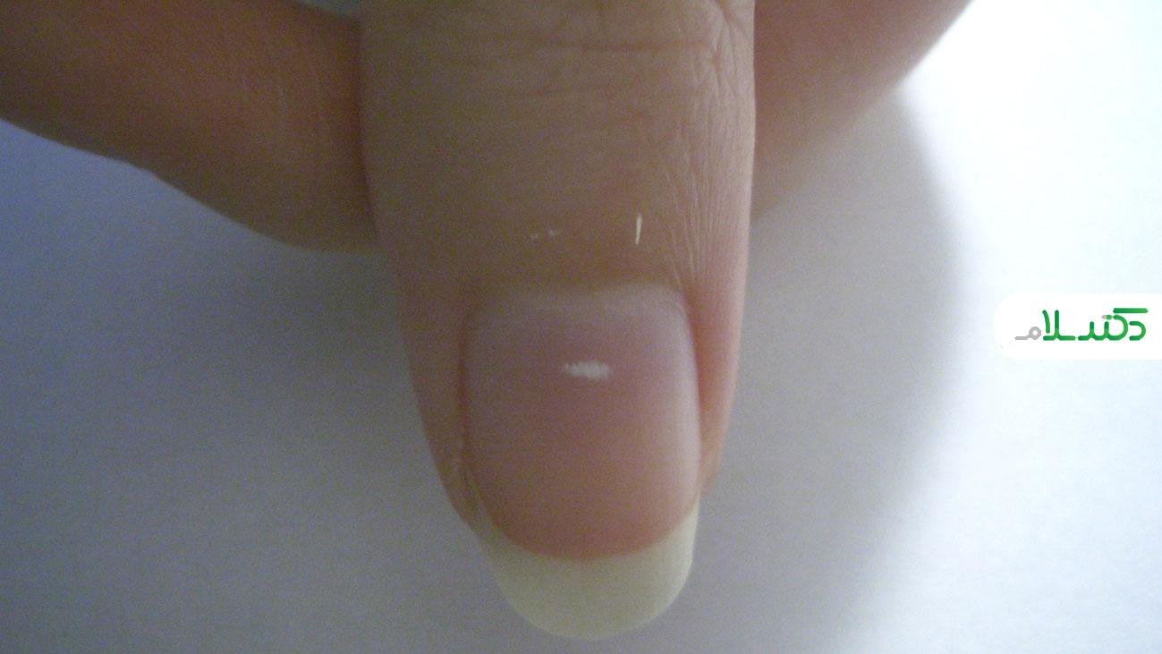 لکه های سفید روی ناخن به چه علت است؟
