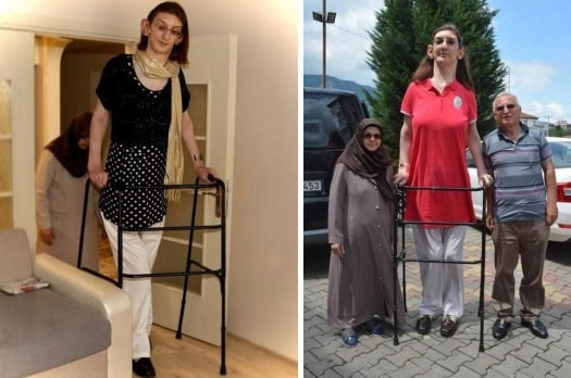 دختر ترک، بلندقدترین زن جهان شد