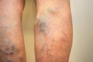 همه آنچه از ترومبوز یا لختگی خون و درمانش باید بدانید