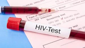 حل معمای سرطانهای نادری که HIV میتواند ایجاد میکند