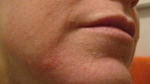 مراقبت از پوست در فصل پاییز با چند راهکار طلایی