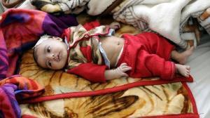 ۳۰ درصد کودکان جهان سوءتغذیه دارند