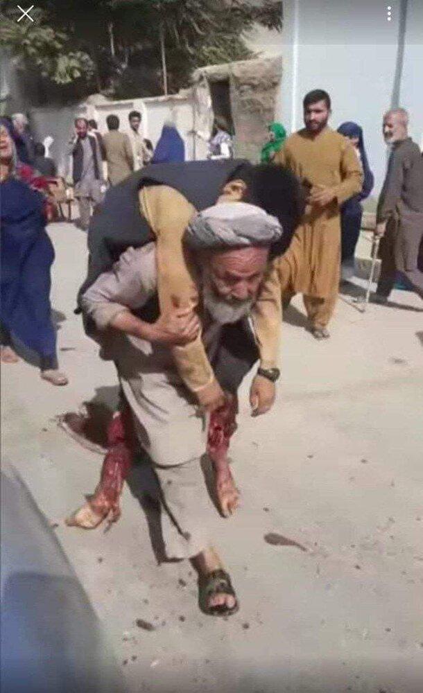 عکس/ بِأَیِّ ذَنْبٍ قُتِلَتْ؛ پیکر پسر افغانستانی بر دوش پدرش