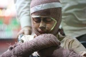 فوت ۸۱ نفر بهدنبال سوختگی در استان اصفهان