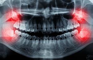 صورتهای کوچک و رشد با تاخیر دندان عقل
