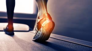 علت درد پاشنه پا هنگام راه رفتن
