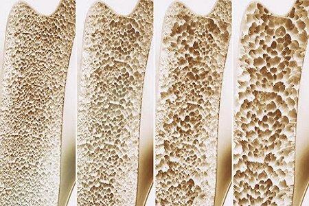 افزایش شیوع پوکی استخوان و بروز شکستگی ناشی از آن در گیلان