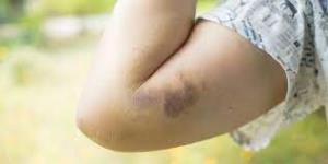 پنج دلیل احتمالی کبودی در بدن