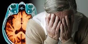 رابطه میزان خواب و بیماری آلزایمر