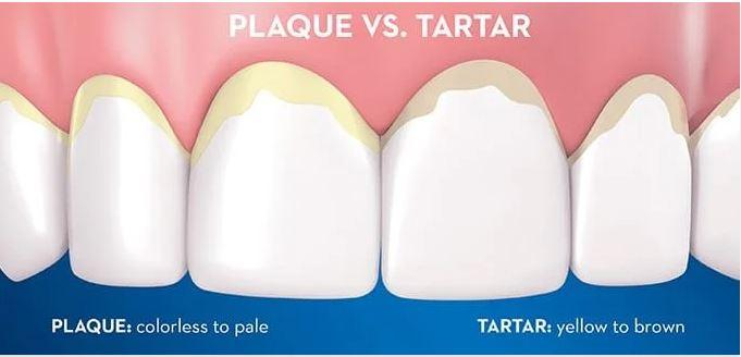 چگونه میتوان جرم دندان را بدون نیاز به دندانپزشک پاک کرد