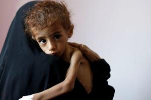 سازمان ملل: منابع مالی برای تغذیه مردم یمن رو به اتمام است