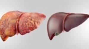 چاقی و دیابت از علل اصلی شیوع خاموش بیماری کبد چرب