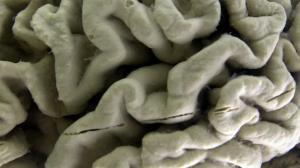 دانشمندان از آسیبهای مغزی بلندمدت بر اثر ابتلا به کرونا میگویند