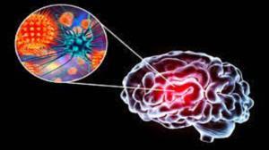 درمان مننژیت باکتریایی با یک روش درمانی جدید