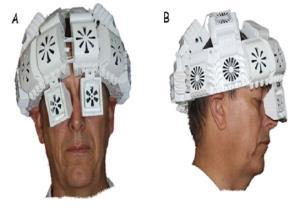 نور «مادون قرمز» رویکرد جدیدی برای درمان زوال عقل