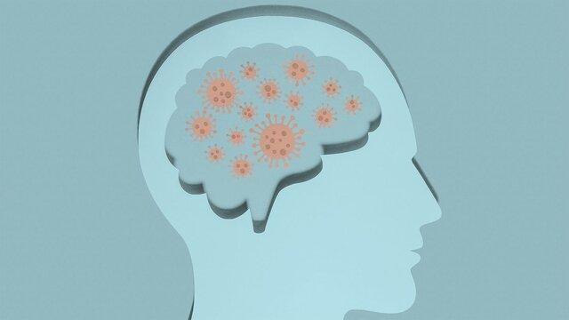 کرونا/ کدام فرد بهبودیافته از کرونا به آلزایمر مبتلا میشود؟