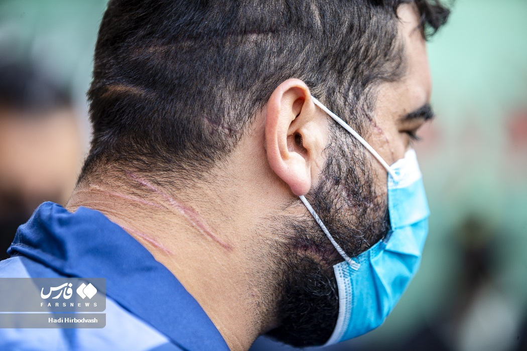 عکس/ دستگیری مجرم ضارب با سلاح سرد در طرح رعد